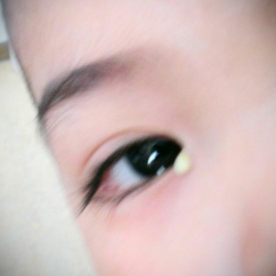 ögoninflammation